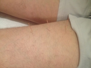 The pleasures of acupuncture